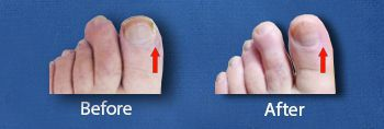 Top Ingrown Toenails (1)