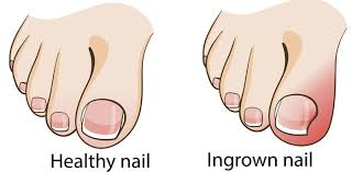 ingrown toenail before and after