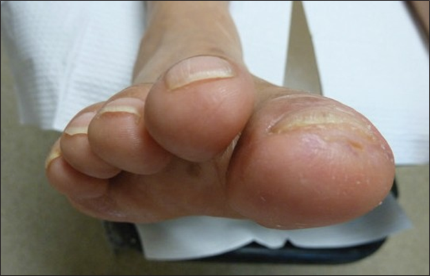right foot after treatment